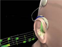 (Image - Cochlear Implant)